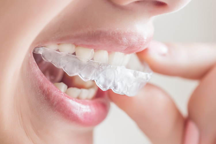 Clear Orthodontic Treatment - Dental Office Boynton Beach