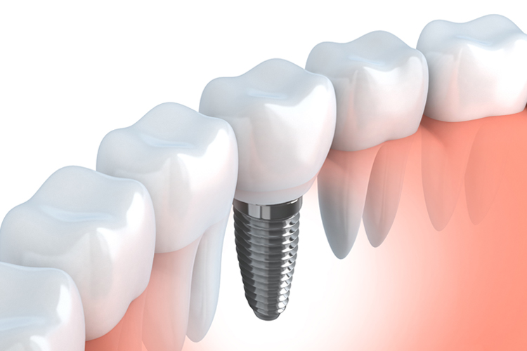 Implants - Dental Office Boynton Beach