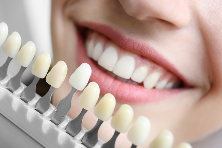 Teeth Whitening - Dental Office Boynton Beach