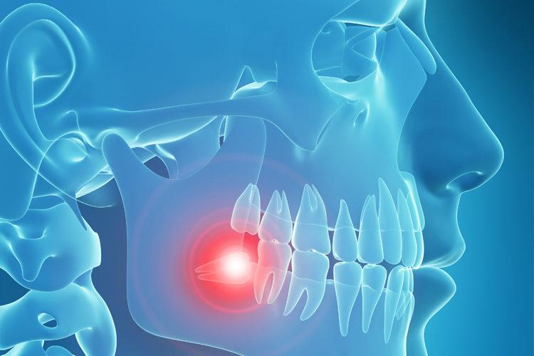 Oral Surgery -- Dental Office Boynton Beach