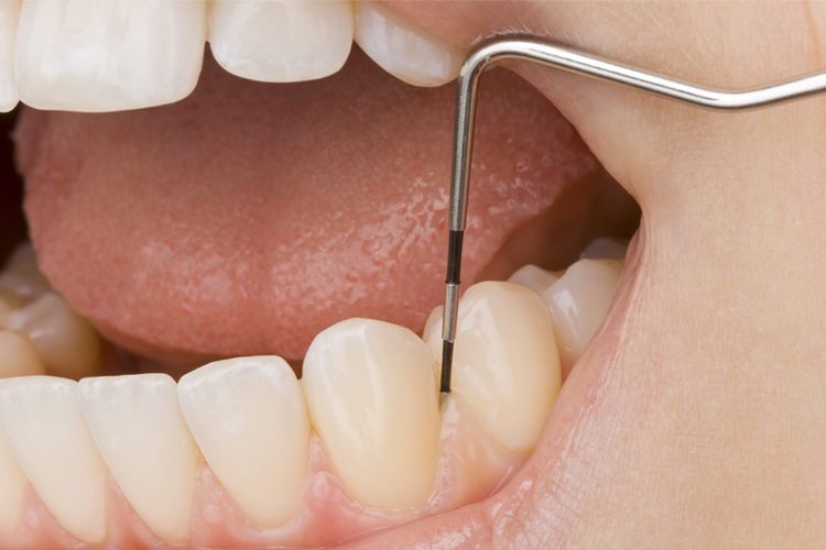 Periodontics - Dental Office Boynton Beach